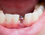 השתלת שיניים במאה ה-21