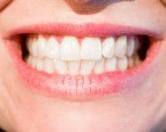 כיצד מבצעים השתלת שיניים במחוסרי עצם?