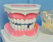 מבנה השיניים – ומה התפקיד של כל אחת מהן?