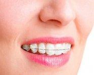 הדרך לשיניים ישרות: הגורמים והפתרונות לשיניים עקומות