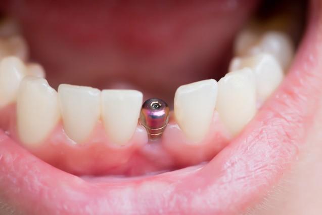 שתלים קצרים: הפתרון למחוסרי עצם